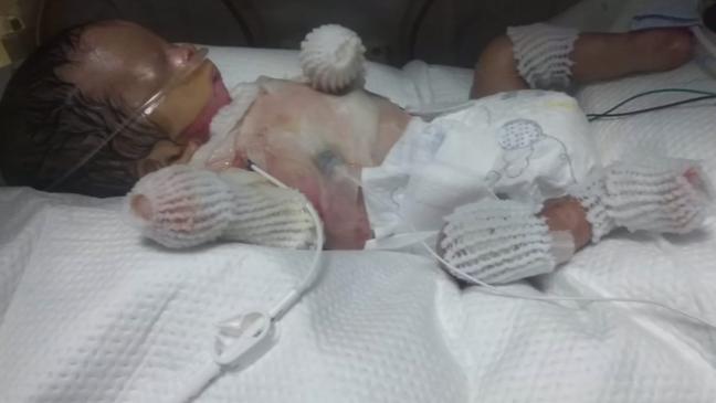 ولادة طفل بدون جلد