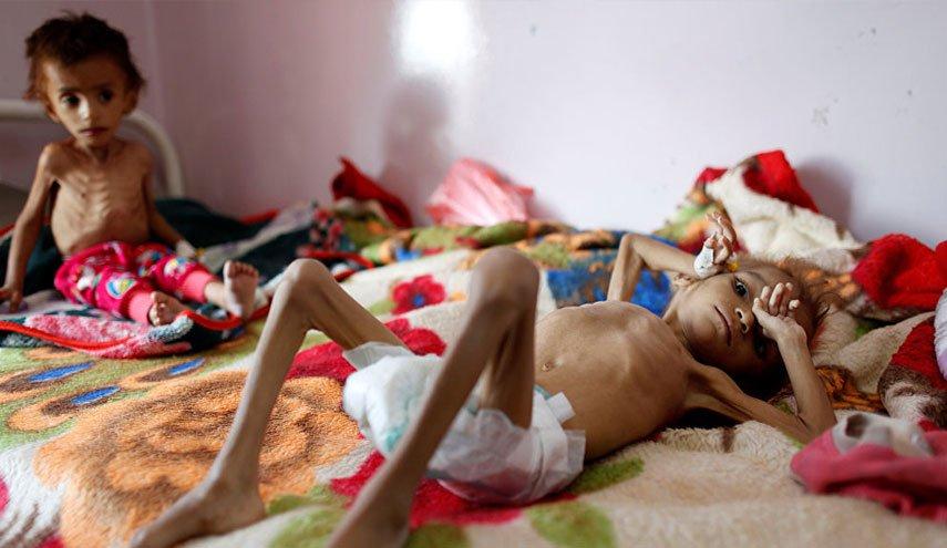 """Photo of تحذير من مجاعة وأمراض.. نداء دولي لإنقاذ مدنيين من حصار تحالف السعودية لـ""""الدريهمي"""" باليمن"""