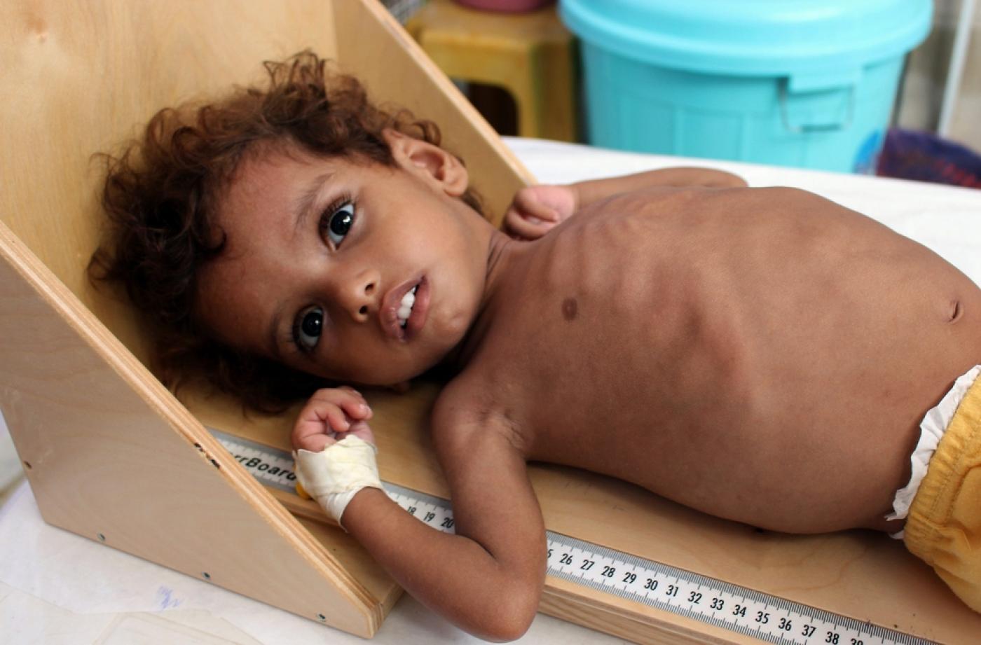 صورة الصليب الأحمر: 75٪ من اليمنيين لا يحصلون على رعاية صحية