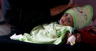 طفل حديث الولادة في اليمن