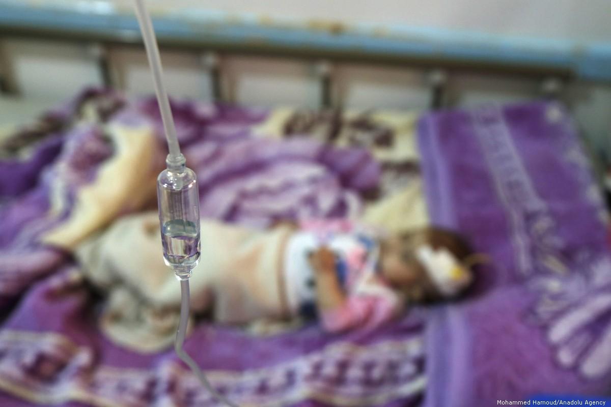 Photo of 50 حالة وفاة في اليمن بسبب فيروس الشيكونغونيا