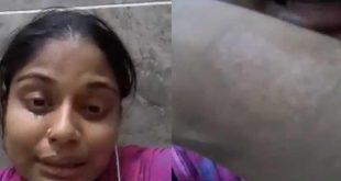 صورة من مقطع فيديو نشرته سومي أكتر وهي تبكي وتظهر عليها علامات الحرق على ذراعها