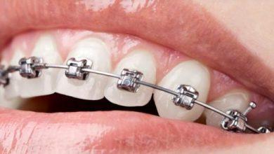 علاج اعوجاج الأسنان