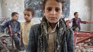 Photo of 80% من اليمنيين يعتمدون المساعدات الخارجية