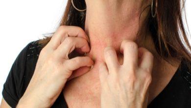 صورة حساسية الجلد… وتهيجه المفاجئ وأسبابه