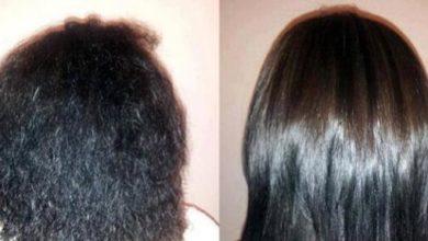 فوائد وأضرار بوتكس الشعر