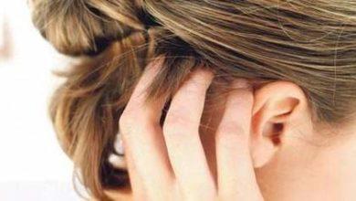 Photo of صدفية فروة الرأس … وطرق علاجها