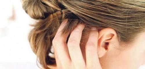 علاج صدفية فروة الرأس
