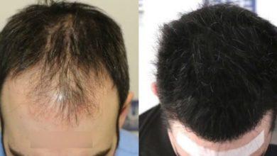 صورة زراعة الشعر بتقنية الاقتطاف (FUE)