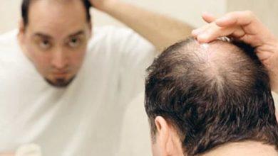 صورة أسباب تساقط الشعر عند الرجال وطرق العلاج
