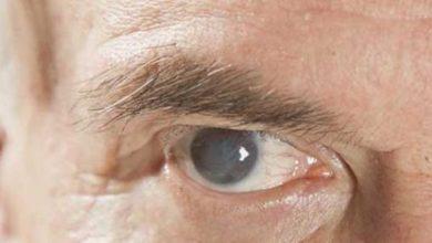 هل بالإمكان علاج المياه البيضاء في العين بدون جراحة
