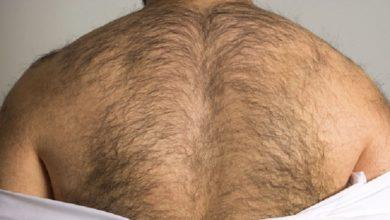 إزالة الشعر الغير مرغوب فيه للرجال بالليزر