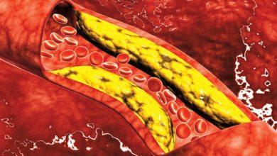 الكوليسترول الجيد