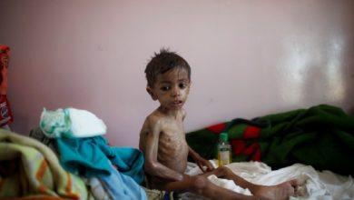 كان العالم قد تغلب إلى حد ما على المجاعات حتى عام 2020