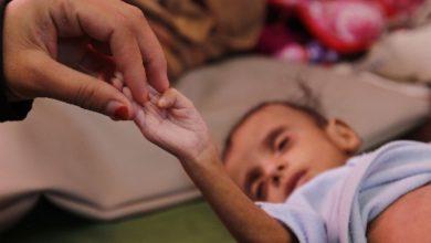 الأمم المتحدة تصف أطفال اليمن