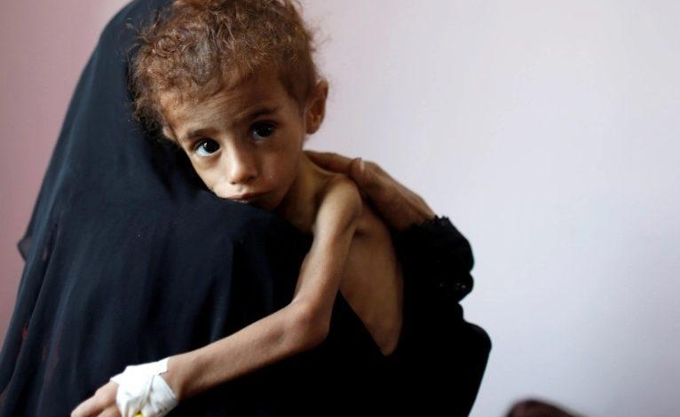 الضحايا في اليمن