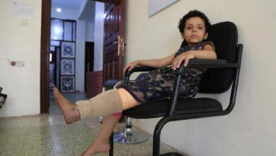 يمنيون داسوا على الألغام الأرضية يروون تجاربهم